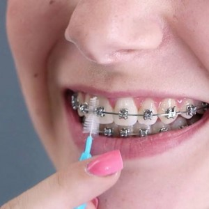 NuSmiles Orthodontics